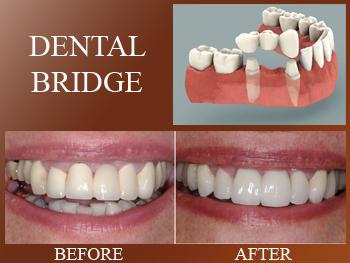 Image result for picture dental bridge